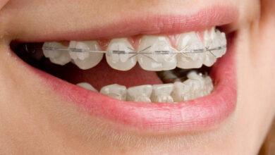 Photo of יישור שיניים ללא גשר מחיר ושיטות שונות